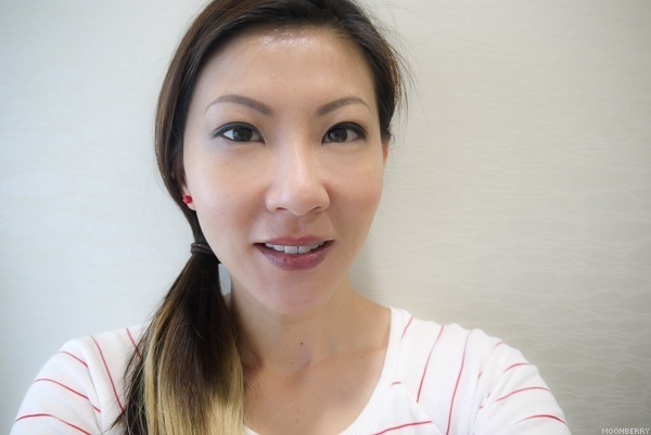 The Dental Studio | Singapore Lifetyle Blog Moonberry
