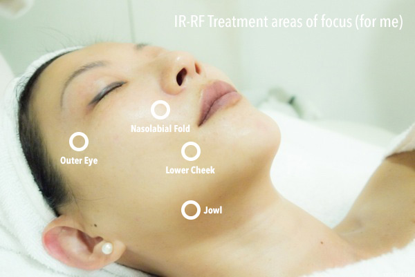 New IR-RF Lifting Treatment at SkinLab