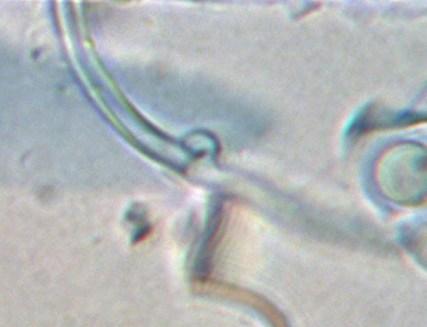 Boucle du téléomorphe Exidiopsis sp. Jonathan Mack, 2013
