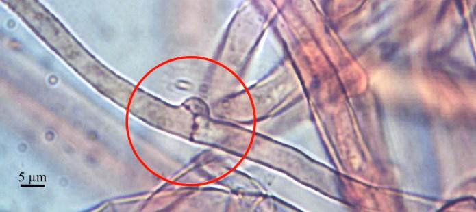 Fig. 5 Cortinarius uliginosus, boucle d'anastomose, les deux dolipores permettent la migration des noyaux.