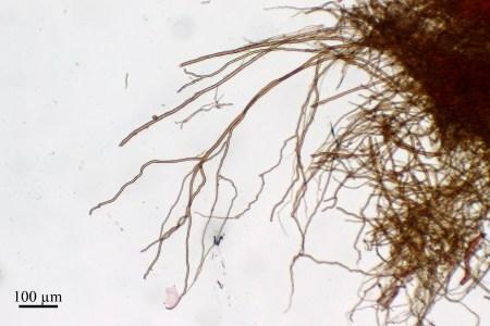 Fig. 5b: Hyphes ligatives de type Bovista. Ganoderma resinaceum, contexte du pileus. © Guy Fortin et Johanne Paquin, 2015