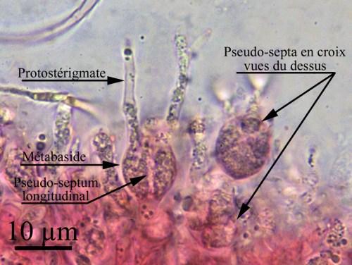 Fig. 3. Pseudohydnum gelatinosum. Les basides de ce Phragmobasidiomycète gélatineux semblent septées verticalement. Le protostérigmate est une hyphe qui germe d'un haplocyte jusqu'à la surface du basidiome et produit un stérigmate et une basidiospore. L'apparence de septation en croix de la baside lorsqu'elle est vue du dessus est typique des phragmobasides septées longitudinalement. ©Guy Fortin