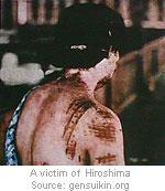 hiroshima-victim-2