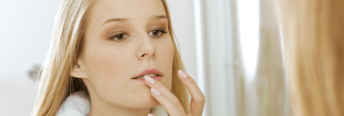 14 Ways to Prevent and Treat Cold Sores Naturally - Nourish