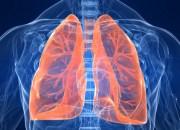 Καρκίνος του πνεύμονα: μπορούμε να μειώσουμε τις πιθανότητες εμφάνισης;