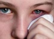 Ξηροφθαλμία: Ο ερεθισμός των ματιών και πώς αντιμετωπίζεται