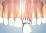 Γιατί να επιλέξω οδοντικά εμφυτεύματα;