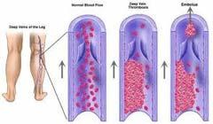 Αποτέλεσμα εικόνας για Θρομβοφλεβίτιδα: Διάγνωση και θεραπευτική αντιμετώπιση