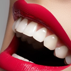 white-teeth-red-lips-smile1