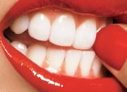 Αλλάξτε το χαμόγελο σας με την τελευταία λέξη της οδοντιατρικής
