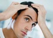 85% αύξηση των μεταμοσχεύσεων μαλλιών παγκοσμίως
