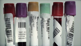 mislabeled tubes