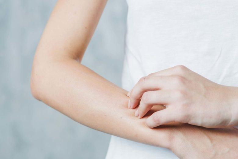peau sèche bras femme - pranaloé boutique de cosmétiques bio en ligne