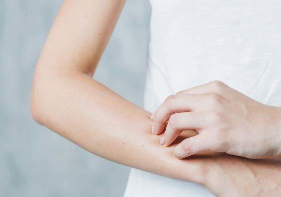 peau sèche bras femme pranaloé