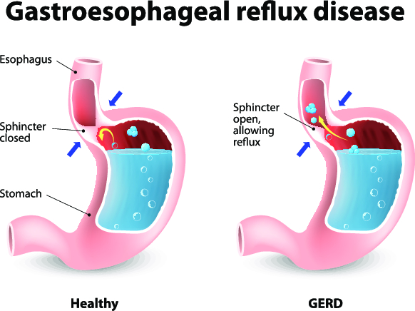 Gastroesophageal Reflux Disease And Pregnancy | The Pulse
