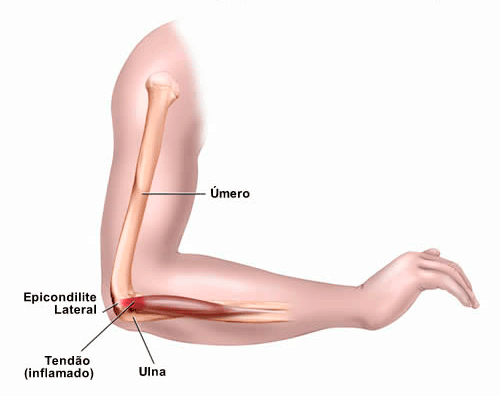 lesoes-tennis-elbow