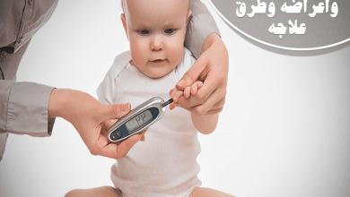 سكري الأطفال أسبابه وأعراضه وطرق علاجه