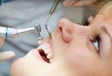 تعرف على العدو الاكثر ضررا لعصب الاسنان