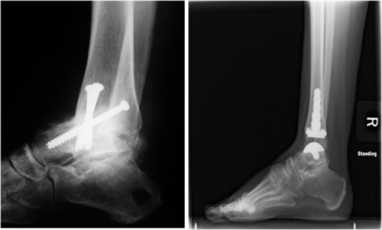 The image on the right is an X-ray of an ankle fusion (using three metal screws that show up as bright white). The shin and the ankle have fused together and the space between them is no longer visible. The image on the left is an X-ray ofan ankle replacement (which shows up as bright white).Credit: American Orthopaedic Foot and Ankle Society (AOFAS)—used with permission.