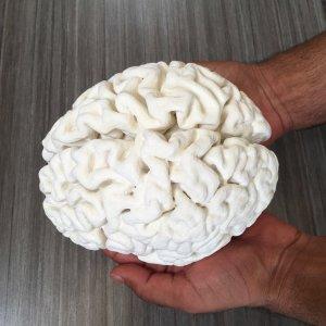 model HM's brain
