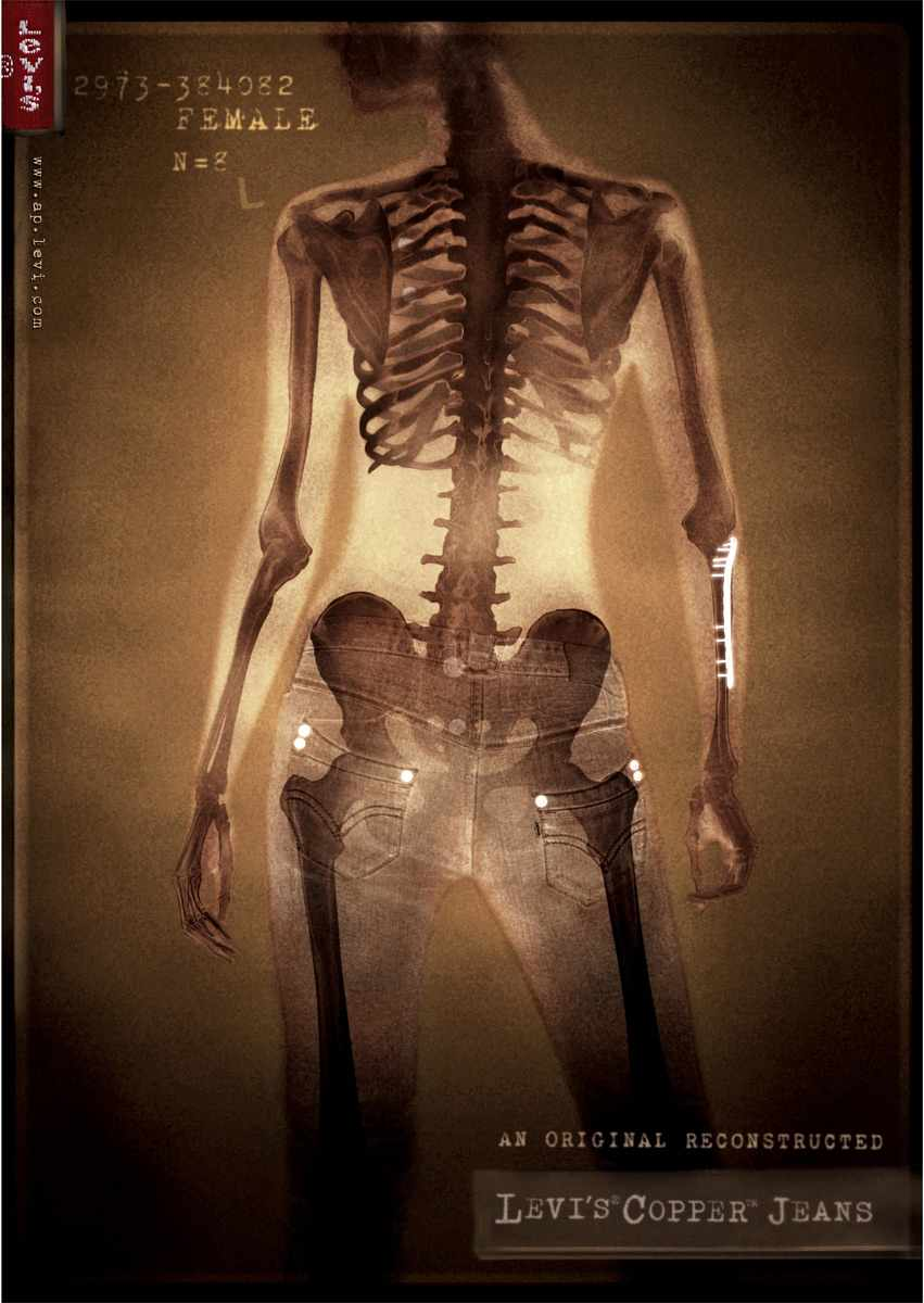 XRAY-FEMALE-800pixels_1