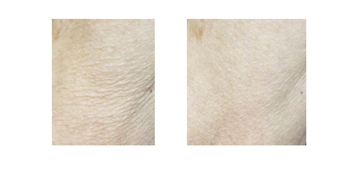 Before and after images of using CrepeSilk.