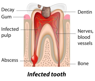 What is an Abscess and Why it needs to be treated