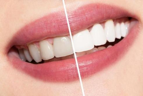 How long does Teeth Whitening last?