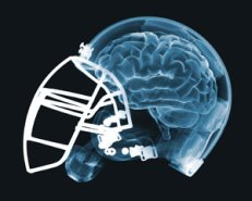 Concussions and Football helmets