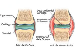 perros con artritis