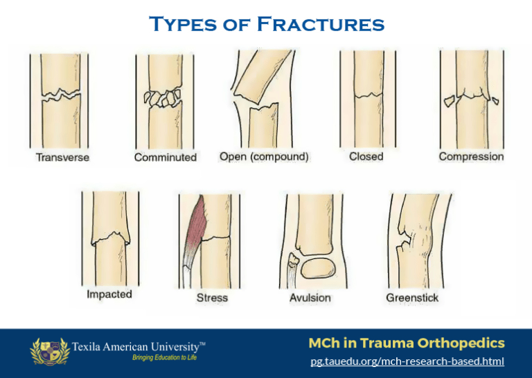 Types-of-Fractures