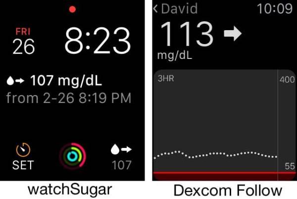 dexcomfollow-watchsugar