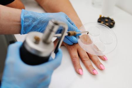 crioterapia dermatologia