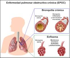 Qué es la EPOC, como mejorar la calidad de vida y como ayudar a los pacientes en su día a día