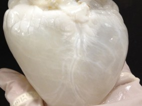A ghost heart?
