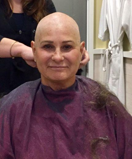 NE_Debbie Bald