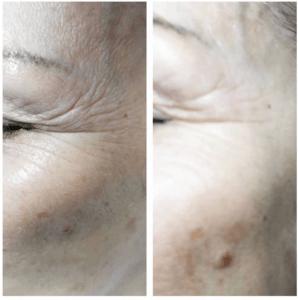 Jet peel anti aging facial