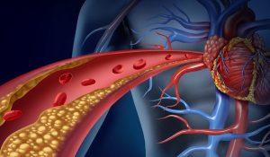aterosclerose-e1486064721795