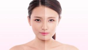 Các kem dưỡng trắng da mặt cho da dầu an toàn, hiệu quả