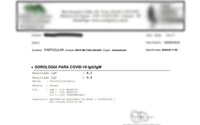 Mulher que não conseguiu ser testada em Santa Cruz do Capibaribe descobre em Caruaru que estava com Covid-19
