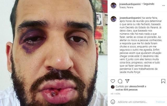 Médico apanha da população por defender Decreto de combate a Covid 19