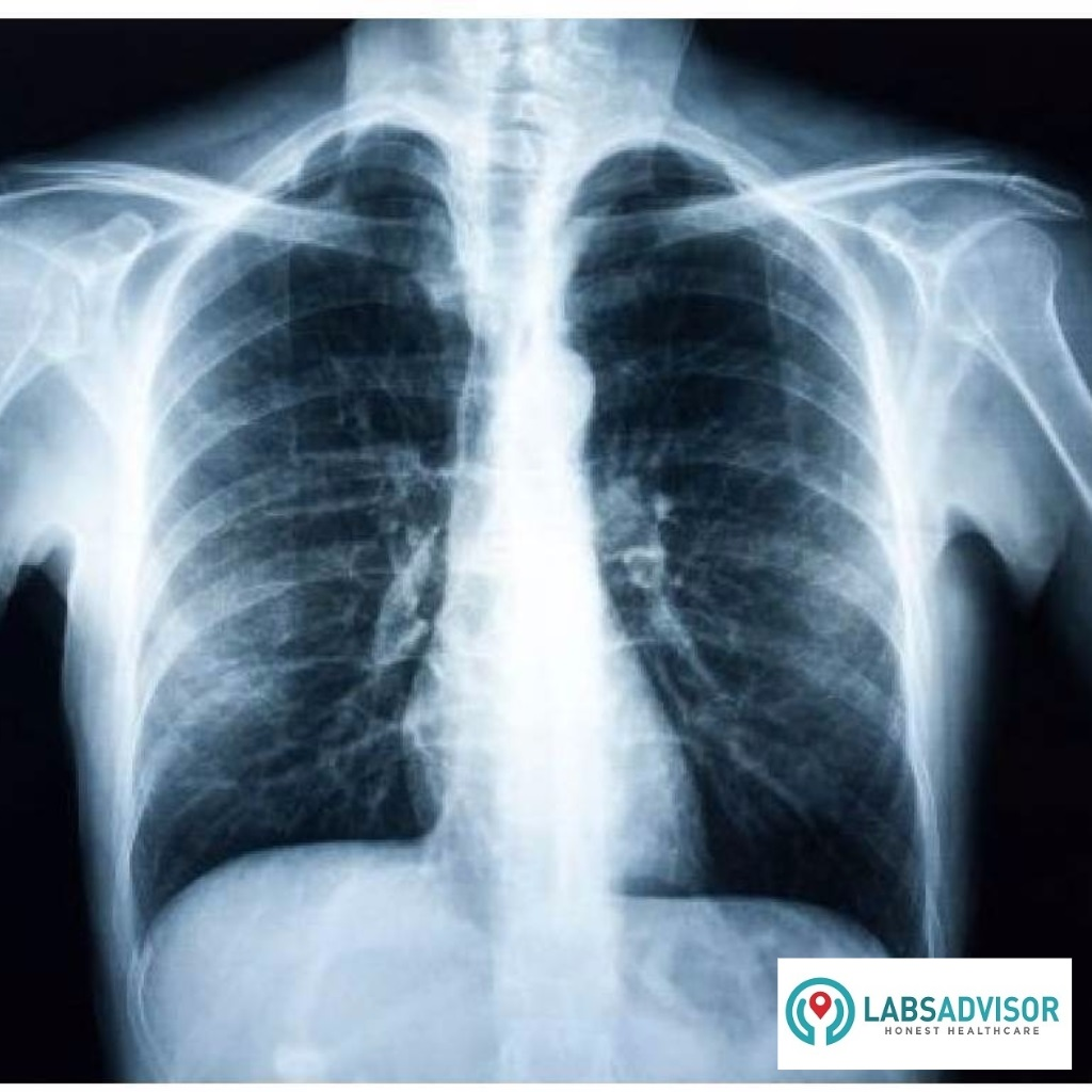 Get 25 Discount On Your X Ray Cost In India
