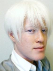 アルビノ,日本人,目の色