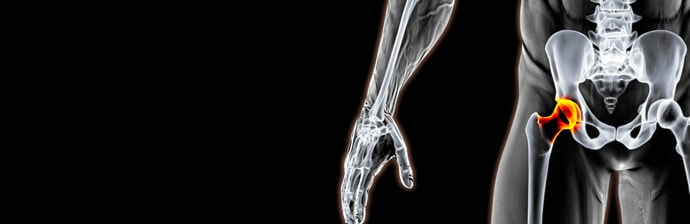 artroplastia-12