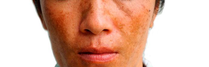 melasma-5 O Que é Melasma? Saiba Tudo sobre Esta Condição