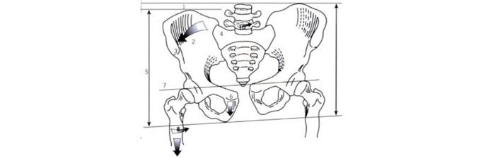 patologias-no-quadril-6