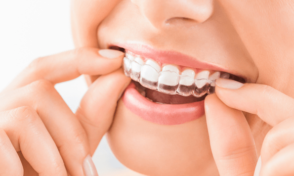 How to get the best from Invisalign treatment