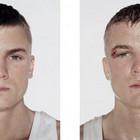 boxeadores_antes_e_depois_de_uma_luta
