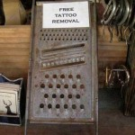 Do-It-Yourself Tattoo Removal Kit