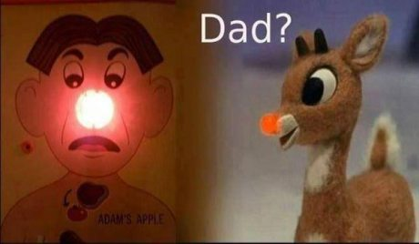 """Rudolph to Operation Game: """"Dad?"""""""